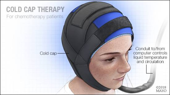 a-medical-illustration-of-cold-cap-therapy-for-chemotherapy-patients-16X9