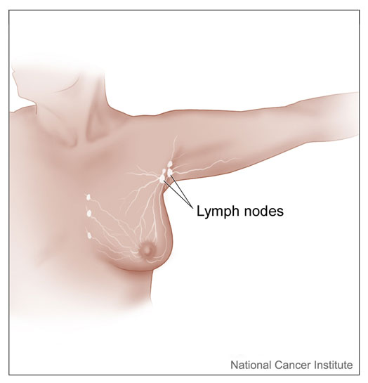 Lymph nodes location-NCI image_med